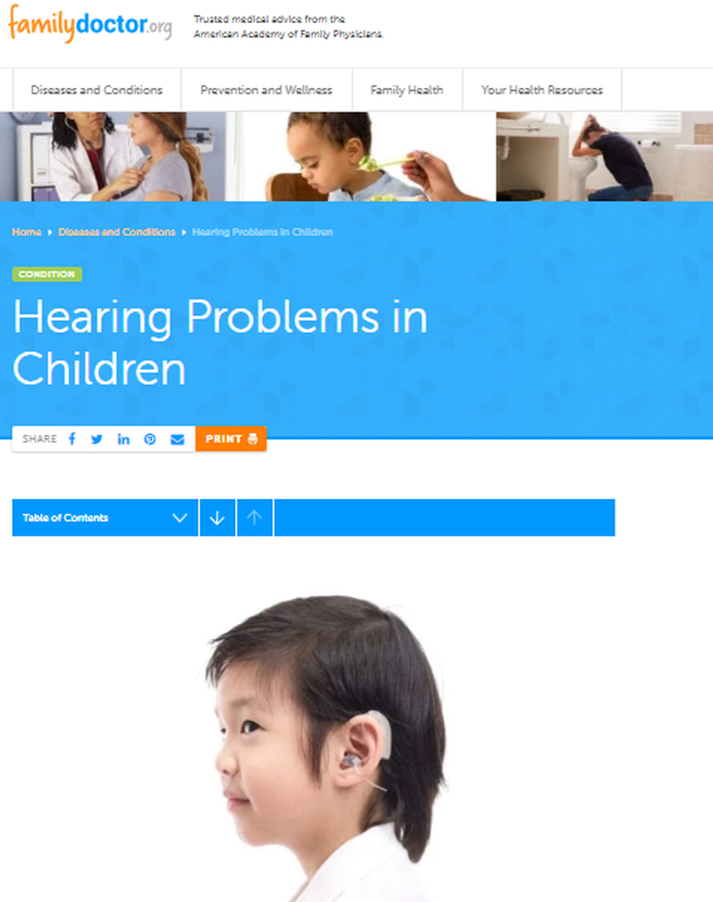 Hearing Problems in Children - familydoctor org.png