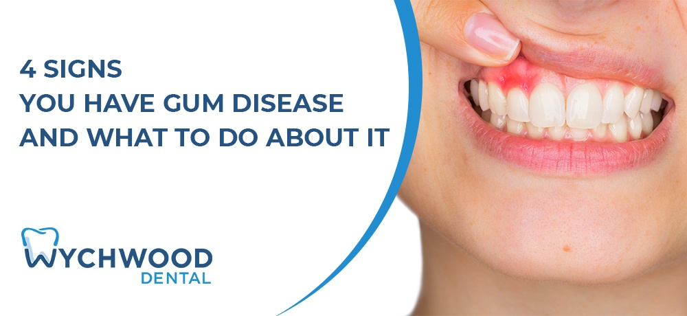 4 Signs You Have Gum Disease and What to Do About It