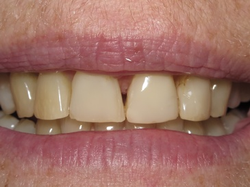 dental implants Toronto