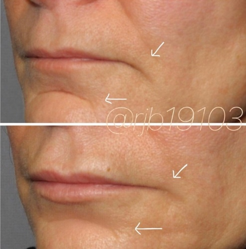 Juvéderm and Restylane HA Filler for a peri-oral rejuvenation at demė