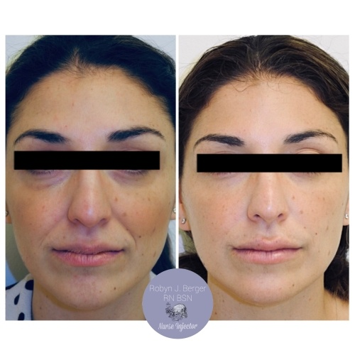 Juvéderm and Restylane HA Filler Treatment at demė