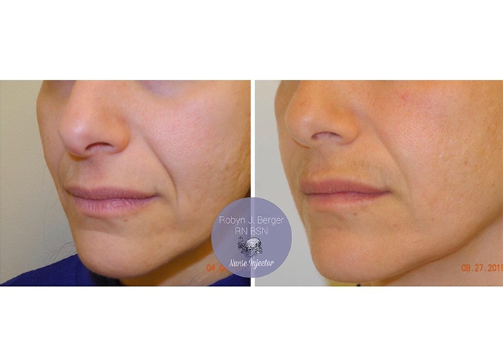 Juvéderm and Restylane HA Filler Treatment at demė - Cosmetic Skin Care