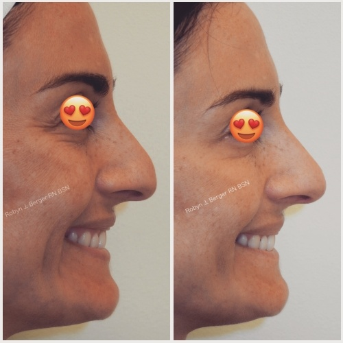 Nonsurgical Rhinoplasty to Reshape the Tip of Her Nose Using Juvéderm and Restylane HA Filler at demė