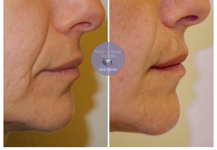 Juvéderm and Restylane Treatment for nasolabial folds, oral commissures, and Botox to the mentalis Muscles