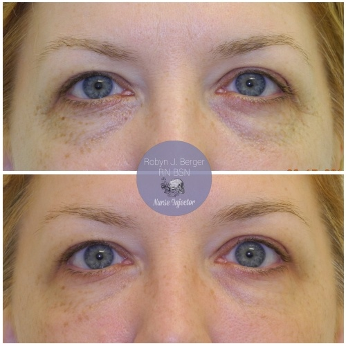 Patient treated with Juvéderm and Restylane HA Filler to the tear troughs under the eyes at demė