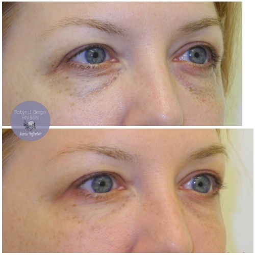 Patient treated with Juvéderm and Restylane HA Filler to the tear troughs under the eyes at demė - Cosmetic Skin Care