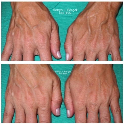 Patient treated with Juvéderm and Restylane HA Filler for hand rejuvenation at demė