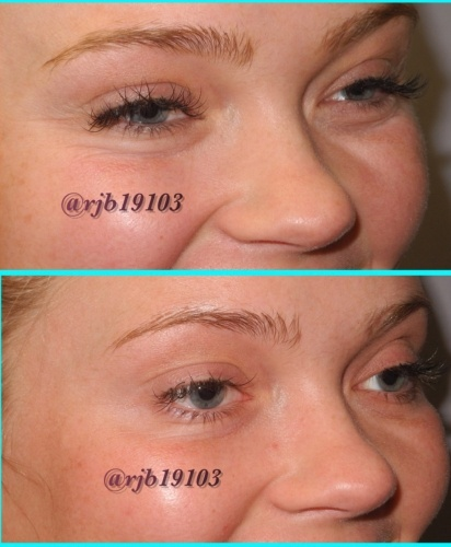Patient treated with Juvéderm and Restylane HA Filler to eyes at demė