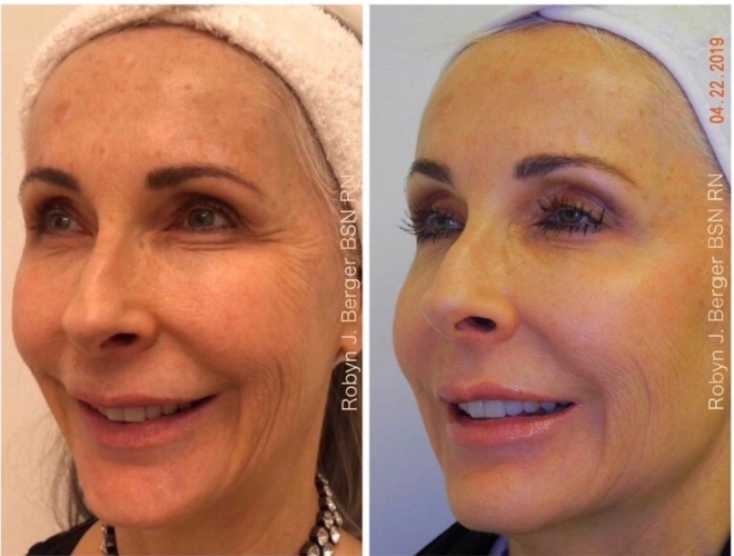 Patient treated with Juvéderm and Restylane HA Filler for a full-face rejuvenation at demė - Skin Care in Philadelphia