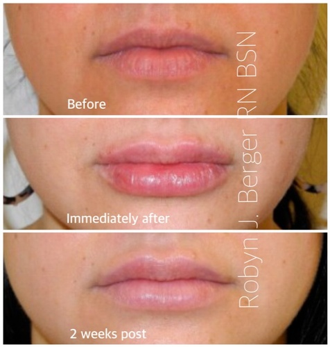 Clinical Lip Treatment at demė - Dermatology Clinic in Philadelphia PA