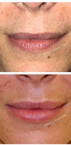 Lip Filler Treatment at demė - Skin Care Services in Wayne
