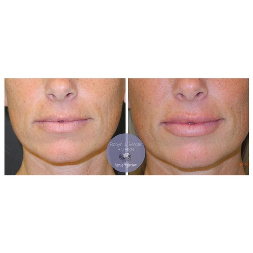 Lip Filler Treatment at demė - Skin Care Services in Wilmington