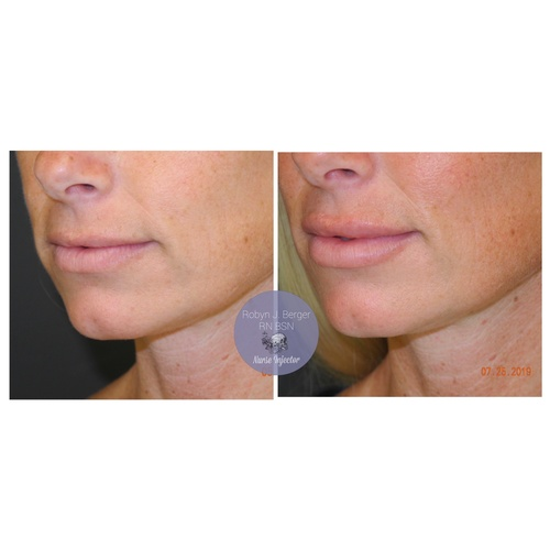 Lip Filler Treatment at demė - Cosmetic Skin Care in Philadelphia