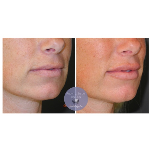 Lip Filler Treatment at demė - Cosmetic Injectables Philadelphia