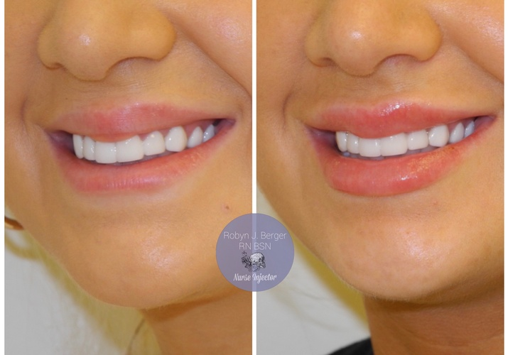 Lip Filler Treatment at demė - Skin Treatment in Wayne