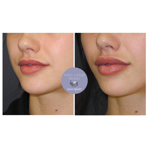 Lip Filler Treatment at demė - Cosmetic Surgery Philadelphia