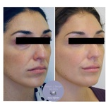 Facial Juvederm Treatment Philadelphia at demė