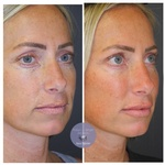 Patient Treated with Juvéderm and Restylane HA Filler to the tear troughs, mid-face and cheeks, and lips at demė