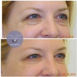 Juvéderm and Restylane HA Filler Treatment at demė - Skin Care Treatment Wayne