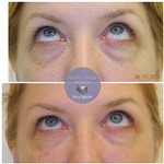 Patient treated with Juvéderm and Restylane HA Filler under the eyes at demė - Philadelphia Cosmetic Skin Care