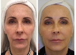 Patient treated with Juvéderm and Restylane HA Filler for a full-face rejuvenation at demė