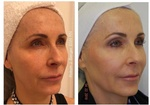 Patient treated with Juvéderm and Restylane HA Filler for a full-face rejuvenation at demė - Skin Care Treatment Wayne
