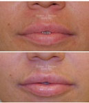 Lip Enhancement at Philadelphia Cosmetic Skin Care Clinic - demė