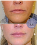 Lip Enhancement Treatment at demė - Philadelphia Cosmetic Skin Care Clinic