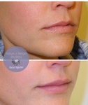 Lips Treatment at Philadelphia Cosmetic Skin Care Clinic - demė