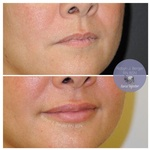 Lip Filler Treatment at demė with Cosmetic Injectables Wilmington