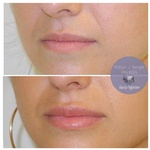 Lip Filler Treatment at demė - Skin Care Services in Philadelphia