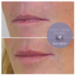 Lip Filler Treatment at demė - Dermatology Clinic in Philadelphia PA