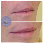 Lip Filler Treatment at demė - Clinical Skin Care Treatment Philadelphia PA