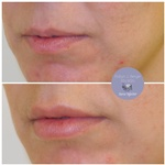 Lip Filler Treatment at demė - Cosmetic Skin Care Clinic in Wayne PA