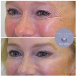 Anti-wrinkle Injection Treatments at Philadelphia Cosmetic Skin Care - demė