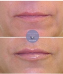 Lip Filler Treatment at demė - Skin Care Services in Delaware