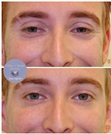 Botox Treatment for crow's feet at demė - Skin Care Treatment Wayne