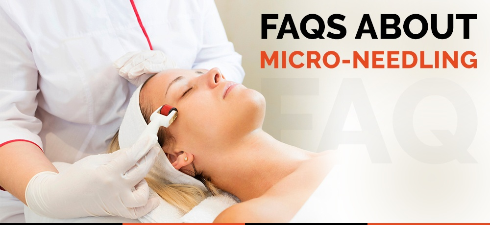 FAQs-About-Micro-needling-Tropicalaser.jpg