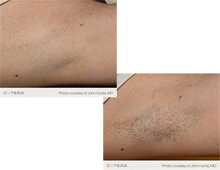 Hair Removal Chilliwack