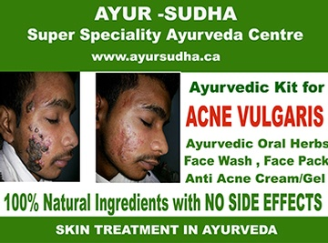 Ayurvedic Kit for Acne Vulgaris by AYUR-SUDHA - Ayurvedic Medicine Kitchener