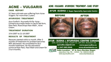 Acne Vulgaris Treated Cases at Ayurvedic Clinic Brampton - AYUR-SUDHA