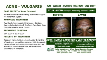 Acne Vulgaris Treated Cases at AYUR-SUDHA - Ayurvedic Centre Canada