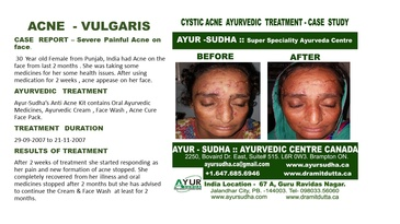 Ayurvedic Treatment for Acne Vulgaris by Ayurvedic Doctor Burlington at AYUR-SUDHA