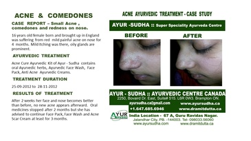 Acne and Comedones Treatment at Ayurvedic Skin Clinic in Brampton ON - AYUR-SUDHA