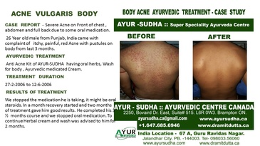 Acne Vulgaris on Body - Ayurvedic Treatment by AYUR-SUDHA - Ayurveda Brampton