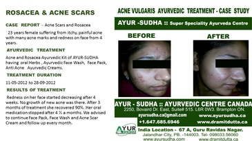 Rosacea and Acne  Scars Treatment by AYUR-SUDHA - Ayurvedic Doctor Burlington