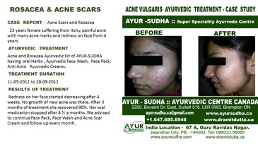 Rosacea and Acne  Scars Treatment by Ayurvedic Doctor Toronto -  AYUR-SUDHA