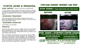 Cystic Acne and Rosacea Treatment at AYUR-SUDHA - Ayurveda Brampton