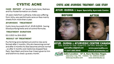Cystic Acne Treated Case by Ayurvedic Doctor Toronto at AYUR-SUDHA
