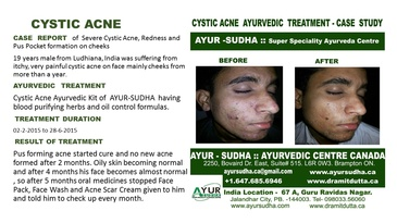 Ayurvedic Treatment for Severe Cystic Acne by Ayurvedic Doctor Toronto at AYUR-SUDHA